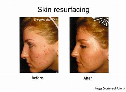 Acne Scars Laser Treatment Skin Resurfacing Surgery