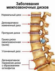 Остеохондроз грудной клетки лечение симптомы