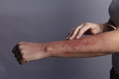 Celiac Disease Gluten Sensitivity And Skin Issues