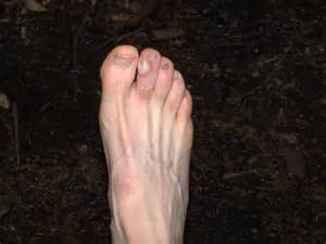 Foot Blister On Toe