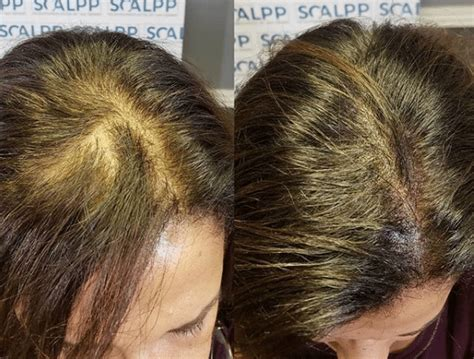 Scalp Micropigmentation For Women | Hairloss and Thinning