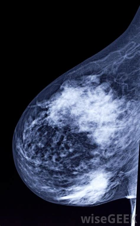 What Happens After Second by What Happens After An Abnormal Mammogram With Pictures