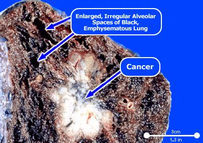 asbestos cancer mesothelioma  lungs mesothelioma