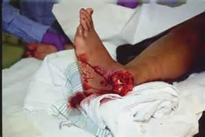 Open Compound Fracture Femur