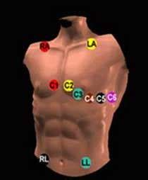 Nuclear Exercise Stress Test - Hamilton Cardiology