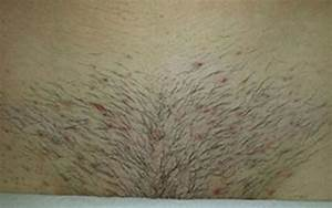 Before And After Hair Removal Results CLHR