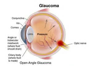 Glaucoma Awareness: What You Need to Know – Optometrist, Eye Doctor ... Glaucoma
