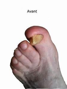 Mycose des ongles de pieds traitement rapide