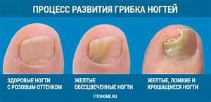 Чем вылечить грибок ногтей на руках лекарства