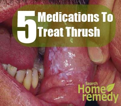 5 Drugs And Medications To Treat Thrush  Best Drugs For. Bathroom Partitions Commercial. Top Mba Schools In New York Refinance My Car. Plastic Surgeons In Modesto Ca. Insulation Charlotte Nc Mortgage Broker Career. Dentists In Murfreesboro Tn Parking Lot Sign. Awning Cleaning Services Columbia Sc Colleges. Self Storage Redwood City Ca Air Motor Car. Server Installation Services