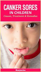 Chinese Pregnancy Chart 2017 Canker Sores In Children Causes Treatment And Remedies