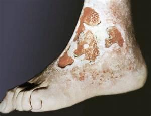 Трофическая язва ноги лечение при сахарном диабете