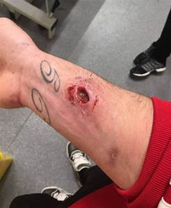Horrendous photos show footballer's injuries after being ...