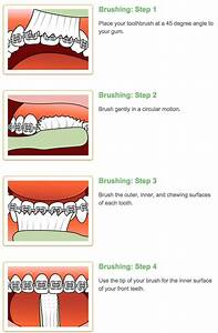 How To Brush Your Teeth With Braces
