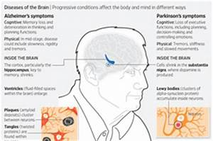 How Parkinson's Disease Affects Mental Ability - WSJ