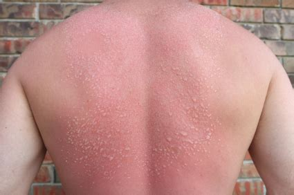 pin sun poisoning rash allergy pictures on pinterest