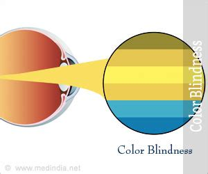 color blindness symptoms color blindness types causes symptoms diagnosis