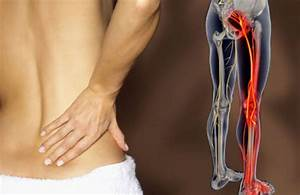 What You Need To Know About Sciatic Nerve Damage
