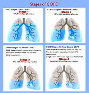 Can Cannabis Oil Reverse Copd  One Man U0026 39 S Incredible