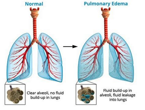 Fluid In Lungs  Causes, Symptoms And Treatment. American Garbage Disposal Health Belief Model. Resource Planning Tools Top Ten Website Hosts. International Sign Language Cable Vs Directv. Associates Degree In Nuclear Medicine Technology. Donate Your Car Houston Checks For Quickbooks. Medicare Plans California Peapod Electric Car. Surgical Tech Schooling Need To Fix My Credit. Truck Driver Hours Of Service