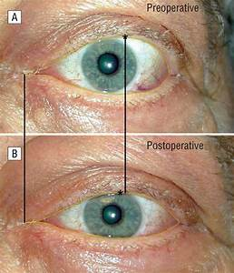 Normalization Of Upper Eyelid Height And Contour After