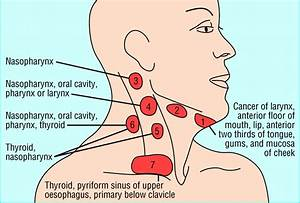 Management Of Lateral Neck Masses In Adults