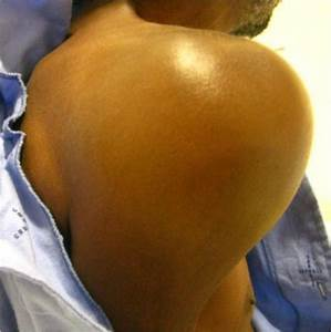 Cancer of the prostate presenting with diffuse osteolytic ...  Shoulder Pain Bone tumors