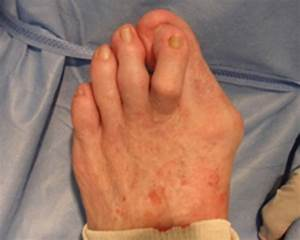 Conservative Management Of Bunions