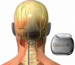 occipital neuralgia medication