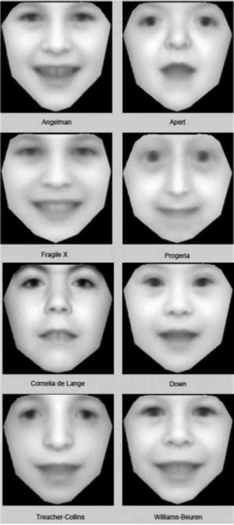 Software scans family photos to diagnose rare disorders