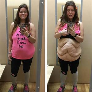 Www Lbs De : woman who lost 185 lbs proudly shows off excess skin ~ Lizthompson.info Haus und Dekorationen