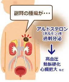 原発 性 アルドステロン 症 太る