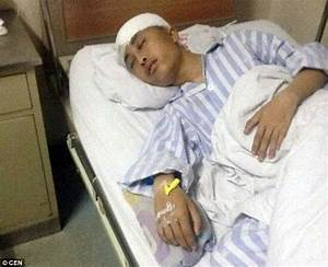 Chinese teen is left with fractured skull after being ...