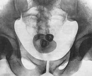 Папиллома в мочевом пузыре у женщин лечение