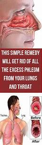 This Simple Remedy Will Get Rid Of All The Excess Phlegm