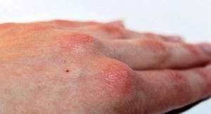 Псориаз и рожистое воспаление