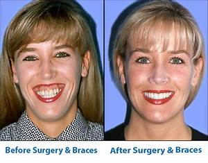 Jaw Surgery | Office of Dr John DiGiovanni | Newport Beach CA