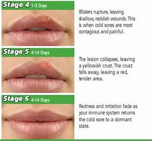 10 Facts About Cold Sores