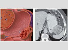 Gastric GIST Radiology Key