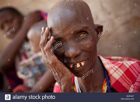 blind in one eye an elderly maasai blind in one eye waits at a