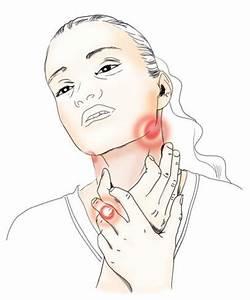 Тонзиллит боли в суставах