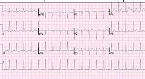 Dr  Smith U0026 39 S Ecg Blog  Low Voltage In Precordial Leads
