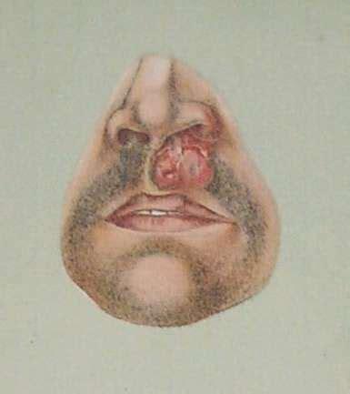 rhinoscleroma