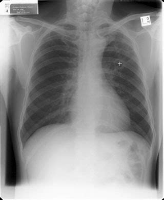 tuberculosis  ray medcity news