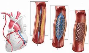 Стационар лечение гипертонии