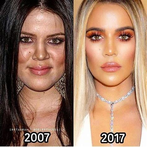 It's amazing what 10 years can do | Kardashian plastic ...