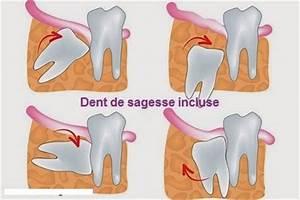 Douleurs Dents De Sagesse : tout ce qu il faut savoir sur les dents de sagesse davidc te ~ Maxctalentgroup.com Avis de Voitures