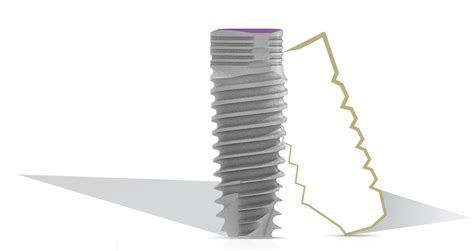 V3 Conical Connection Dental Implants System