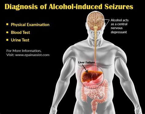 What Is Alcoholinduced Seizurecausessymptomstreatment. Cheap Car Insurance Charlotte Nc. Asap Movers San Luis Obispo Stony Brook Vpn. The Best Dedicated Server Joint Pain Fatigue. Webinar Software Comparison Dr Freeman Obgyn. Best Construction Estimating Software. How To Naturally Detox Liver. Average Cost Of Cable Per Month. Supplemental Health Insurance To Cover Deductible