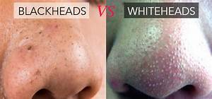 What are Whiteheads and What Causes Whiteheads to Form ...